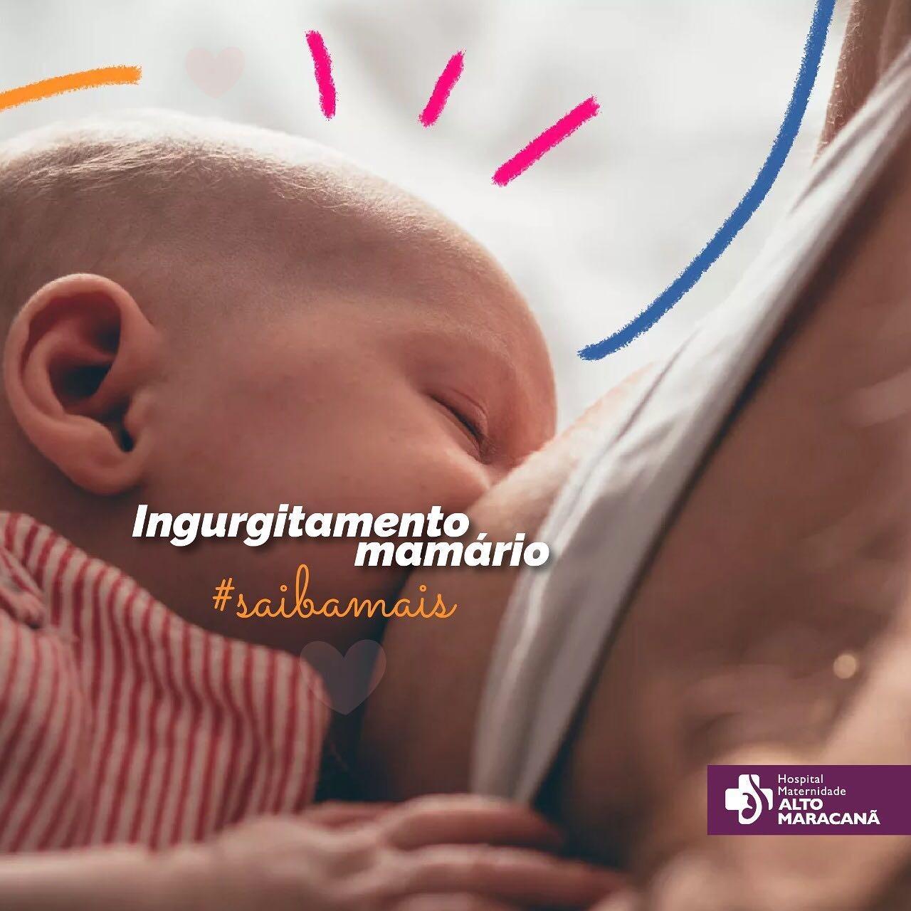 Ingurgitamento Mamário: O Que É?